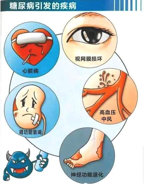 关节炎、糖尿病患者慎用加湿器!